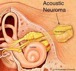 A diagram of the ear showcasing acoustic neuroma and how it relates to tinnitus.
