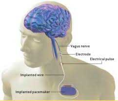 Shows placement of vagus nerve in humans.