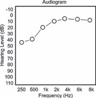 meniere's disease audiogram